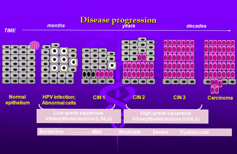 hpv disease progression