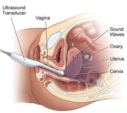 transvaginal sonogram